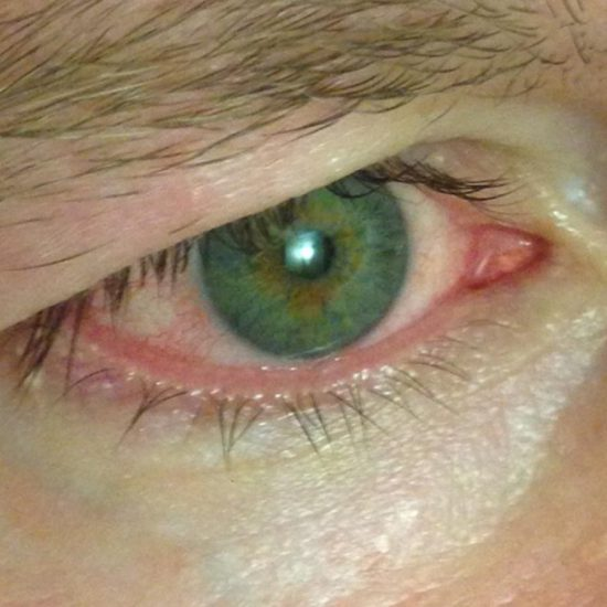 4 Ways To Get Rid of Red Eye From Consuming Marijuana